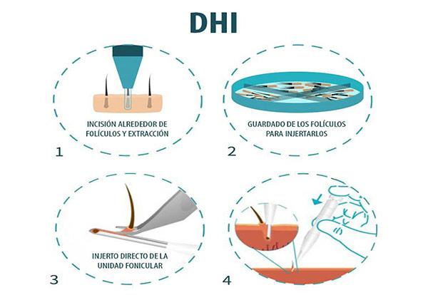 dhi sac ekimi - کاشت مو DHI | کاشت مو | قیمت کاشت DHI