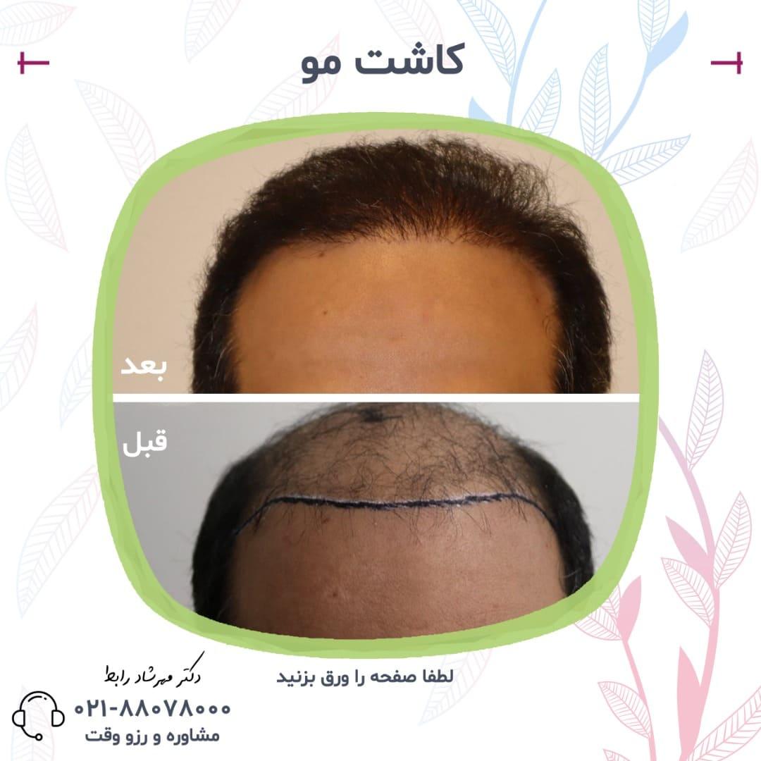 e50ce083 b343 4c96 9d21 96b723163684 - قیمت کاشت مو در بهترین مرکز پیوند مو طبیعی