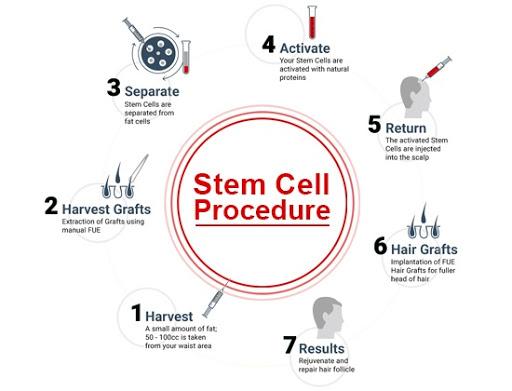 unnamed 1 - کاشت مو با سلول های بنیادی | کاشت مو | قیمت کاشت با سلول های بنیادی