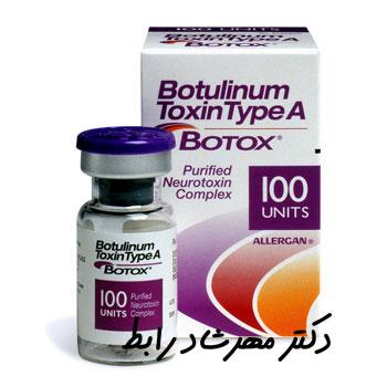 Botox laser - تزریق انواع بوتاکس صورت