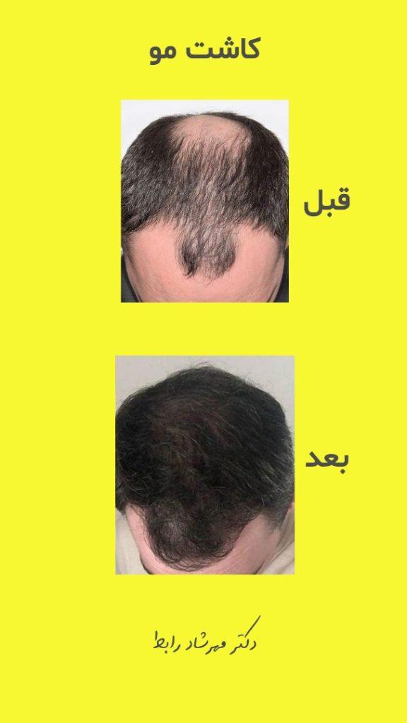 IMG 6482 576x1024 - قیمت کاشت مو در بهترین مرکز پیوند مو طبیعی