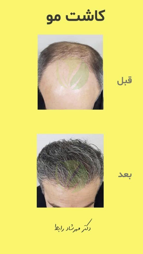 IMG 6584 576x1024 - قیمت کاشت مو در بهترین مرکز پیوند مو طبیعی