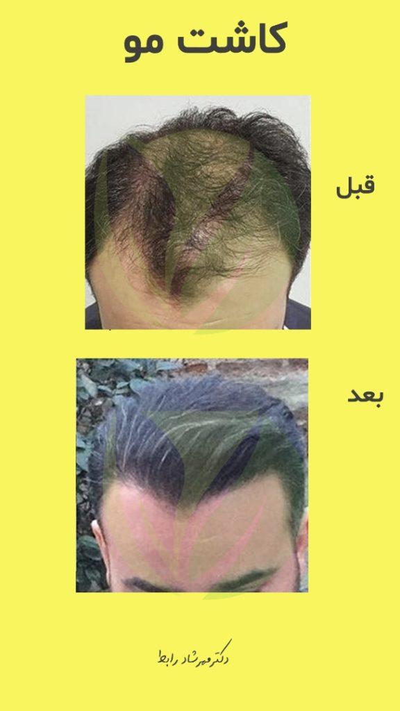 IMG 6682 576x1024 - قیمت کاشت مو در بهترین مرکز پیوند مو طبیعی