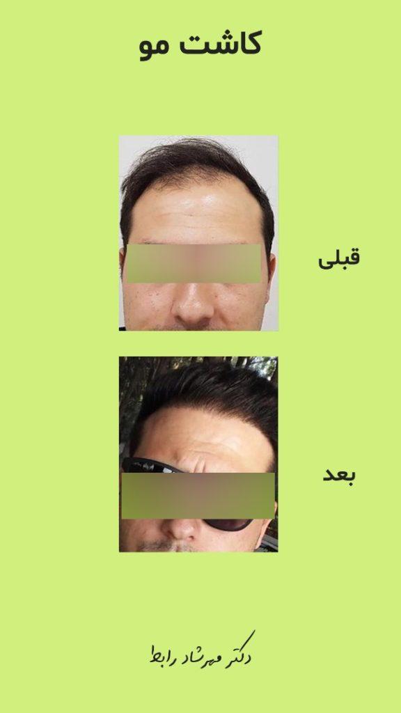 IMG 7004 576x1024 - کاشت مو | عوارض کاشت مو