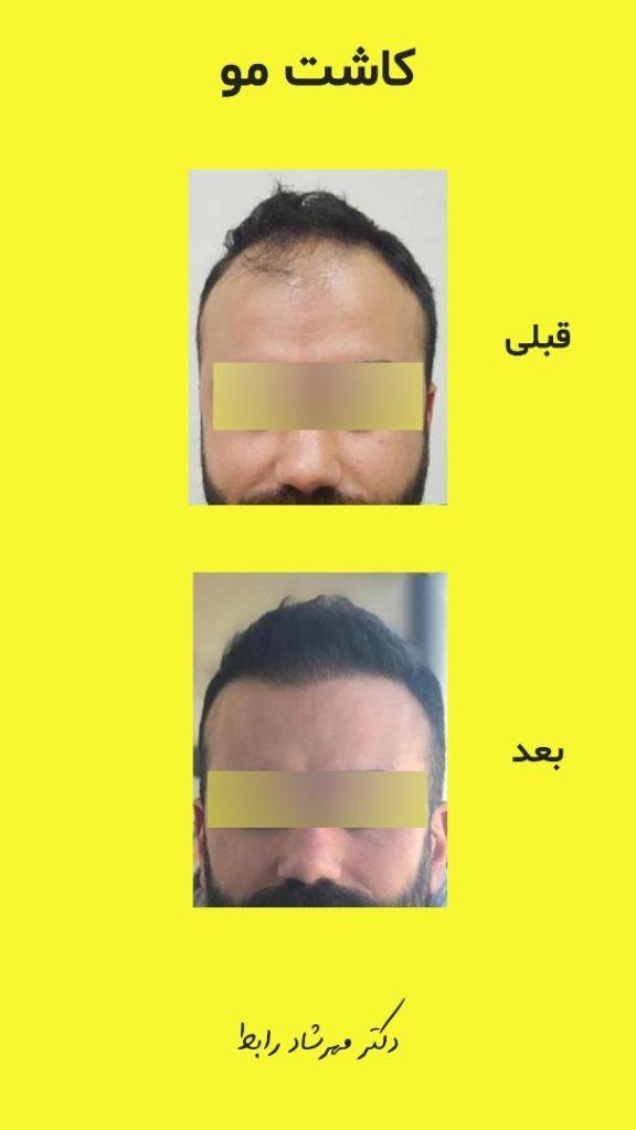 IMG 7005 576x1024 - کاشت مو | عوارض کاشت مو