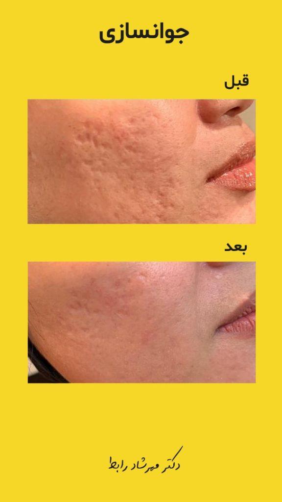 IMG 7069 576x1024 - درمان و از بین بردن جای جوش صورت و پوست