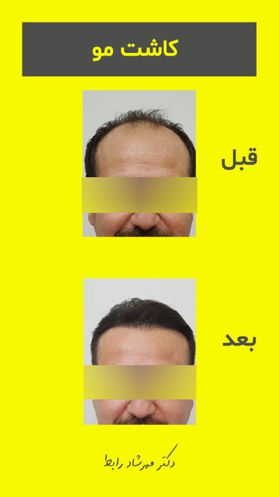 IMG 7268 576x1024 - قیمت کاشت مو در بهترین مرکز پیوند مو طبیعی