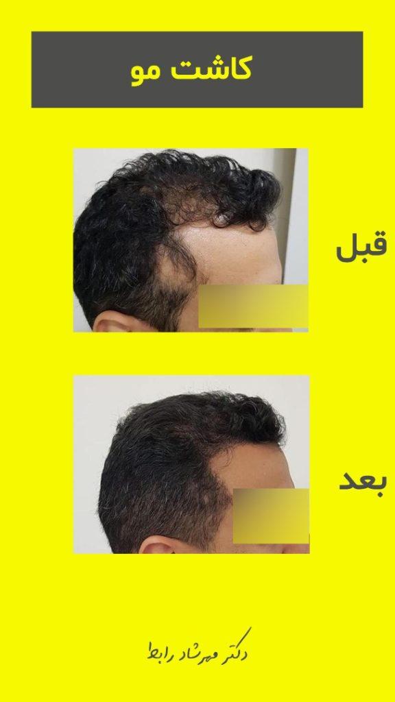IMG 7269 576x1024 - قیمت کاشت مو در بهترین مرکز پیوند مو طبیعی
